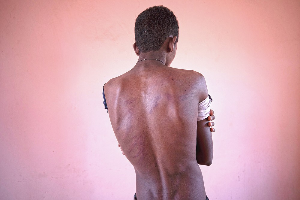Fisseha Welay, an 18-year-old Tigrayan student who fled the conflict in Ethiopia's Tigray, shows the wounds on his back from being beaten by Eritrean soldiers, hours after his arrival to Hamdayet, eastern Sudan, near the border with Ethiopia, on March 17, 2021. The atrocities have been seared into the skin. They arrive in heat that soars above 100 degrees, carrying the pain of gunshot wounds, torn vaginas, fresh welts on malnourished backs from beatings. Unseen are the horrors that jolt them awake at night. Bodies strewn on riverbanks. (AP Photo/Nariman El-Mofty)