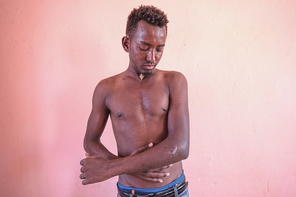 """Berhane Gebrewahid, a 24-year-old Tigrayan farmer who fled the conflict in Ethiopia's Tigray, stands for a portrait in eastern Sudan, near the border with Ethiopia, on March 14, 2021, showing his gunshot wound from Amhara and Wolkait fighters seeking his cattle. Gebrewahid said he saw food aid being distributed in February 2021 by Amhara authorities. But it was refused to Tigrayans. """"I saw this,"""" he said. """"It happened to me. First, they asked your ethnicity."""" Even the name of his homeland had changed, he said. """"They called it Northern Gondar,"""" after a major city in Amhara. (AP Photo/Nariman El-Mofty)"""