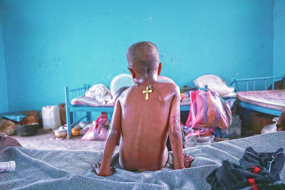 Tigrayan 5-year-old refugee Micheale Gebremariam sits on his bed in the early morning in Hamdayet, eastern Sudan, near the border with Ethiopia, on March 21, 2021. (AP Photo/Nariman El-Mofty)