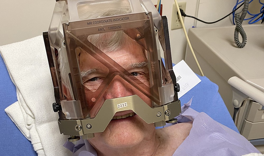 Wearing a halo brace, Jerry Butler gets ready for his 5-hour deep brain stimulation surgery at UAMS Medical Center in June 2021. The halo is fastened to the skull with pins and screws to assist the surgeon's precision as she places electrodes within the thalamus with 1-mm accuracy. The injection of the local anesthesia while fitting the halo is the most painful part of the procedure. (Special to the Democrat-Gazette/Jerry Butler)